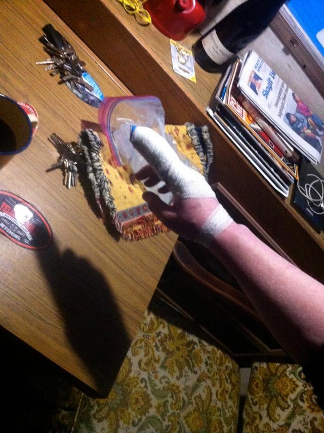 smashed-finger